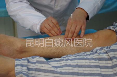 白癜风中医治疗
